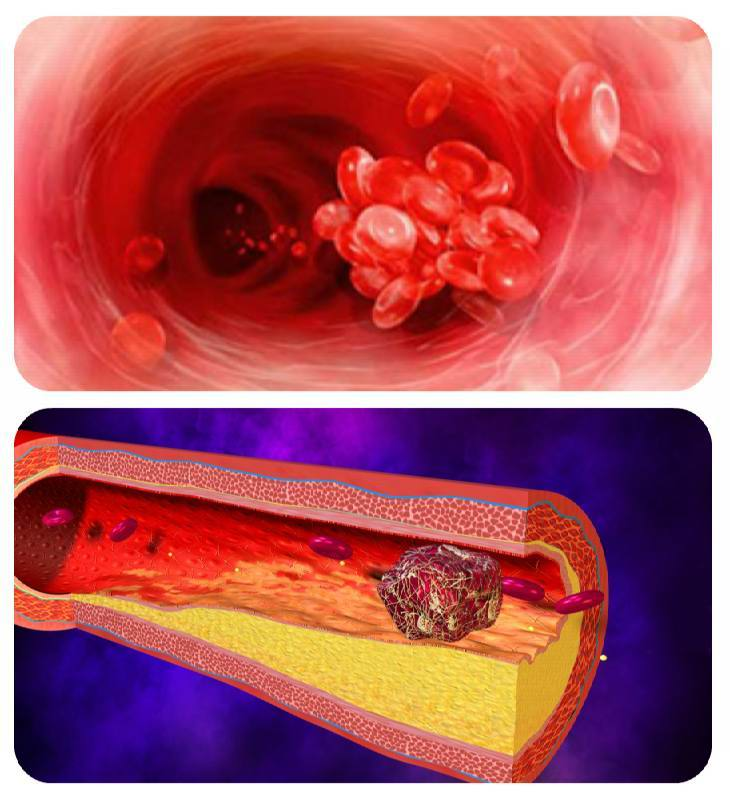 Тромболиз