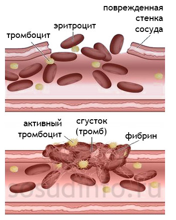 Причина тромбов