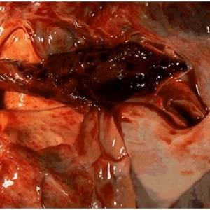 Тромбоэмболия легких фото