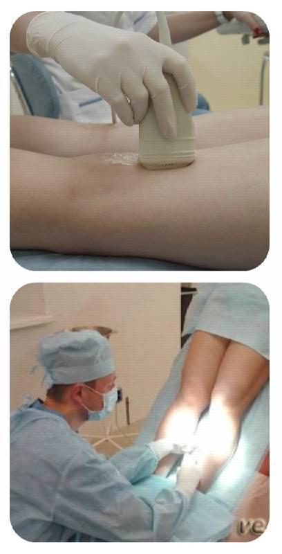 Лечение тромбоза вен нижних конечностей