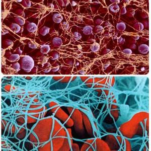Пониженные тромбоциты в крови