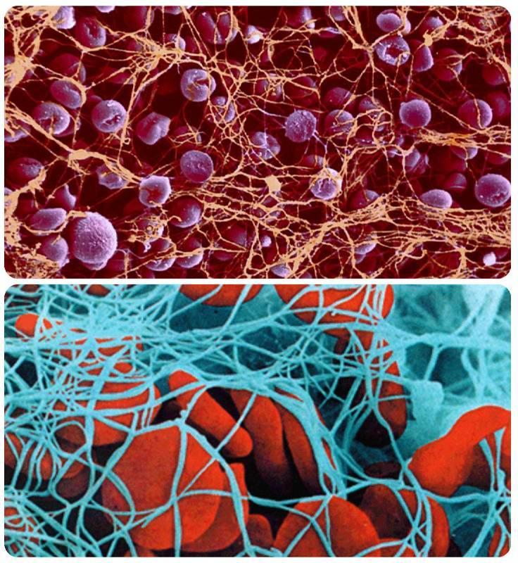 Тромбоциты понижены. Причины пониженных тромбоцитов у взрослого и ...
