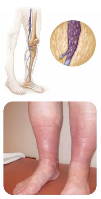 Тромбоз глубоких вен нижних конечностей - Причины, симптомы и ...