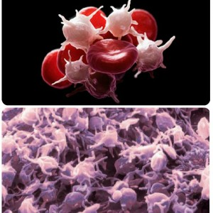 Тромбоцити підвищені в крові що це означає? » журнал здоров'я iHealth