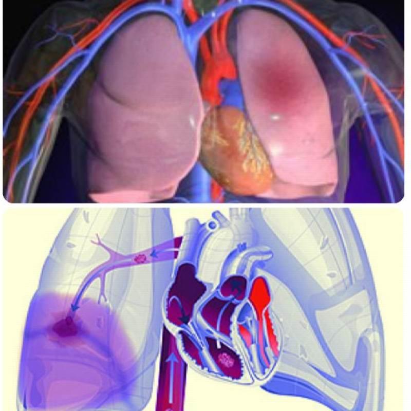 Тромбоемболія легеневої артерії » журнал здоров'я iHealth 1