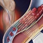 Тромбофлебит: причины, симптомы, лечение, профилактика