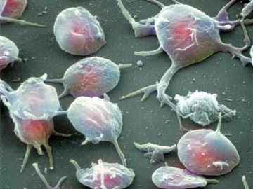 Почему тромбоциты повышены