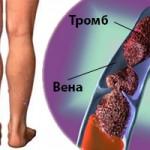 Методы диагностики и подходы к лечению тромбоза нижних конечностей