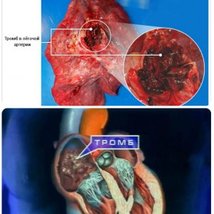 Причини утворення тромбів в судинах і від чого тромби симптоми, профілактика і лікування » журнал здоров'я iHealth