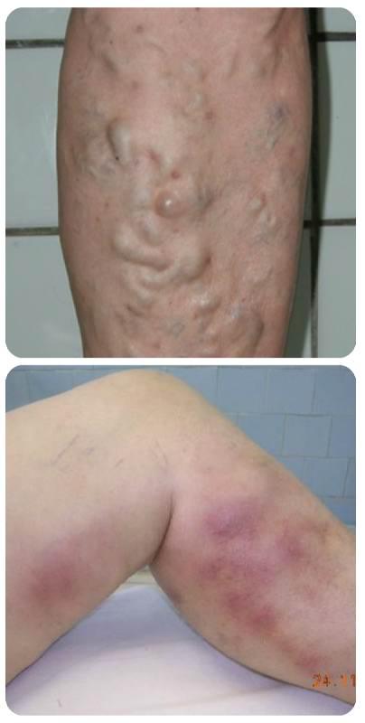 Симптоми і лікування тромбофлебіту глибоких вен нижніх кінцівок » журнал здоров'я iHealth