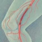 Тромб в ноге симптомы