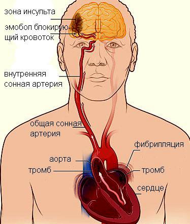 Признаки тромба в организме