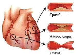 Тромб в серці що це таке? » журнал здоров'я iHealth