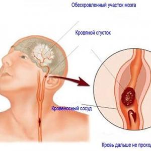 Причини утворення тромбів в судинах і від чого тромби симптоми, профілактика і лікування » журнал здоров'я iHealth 1