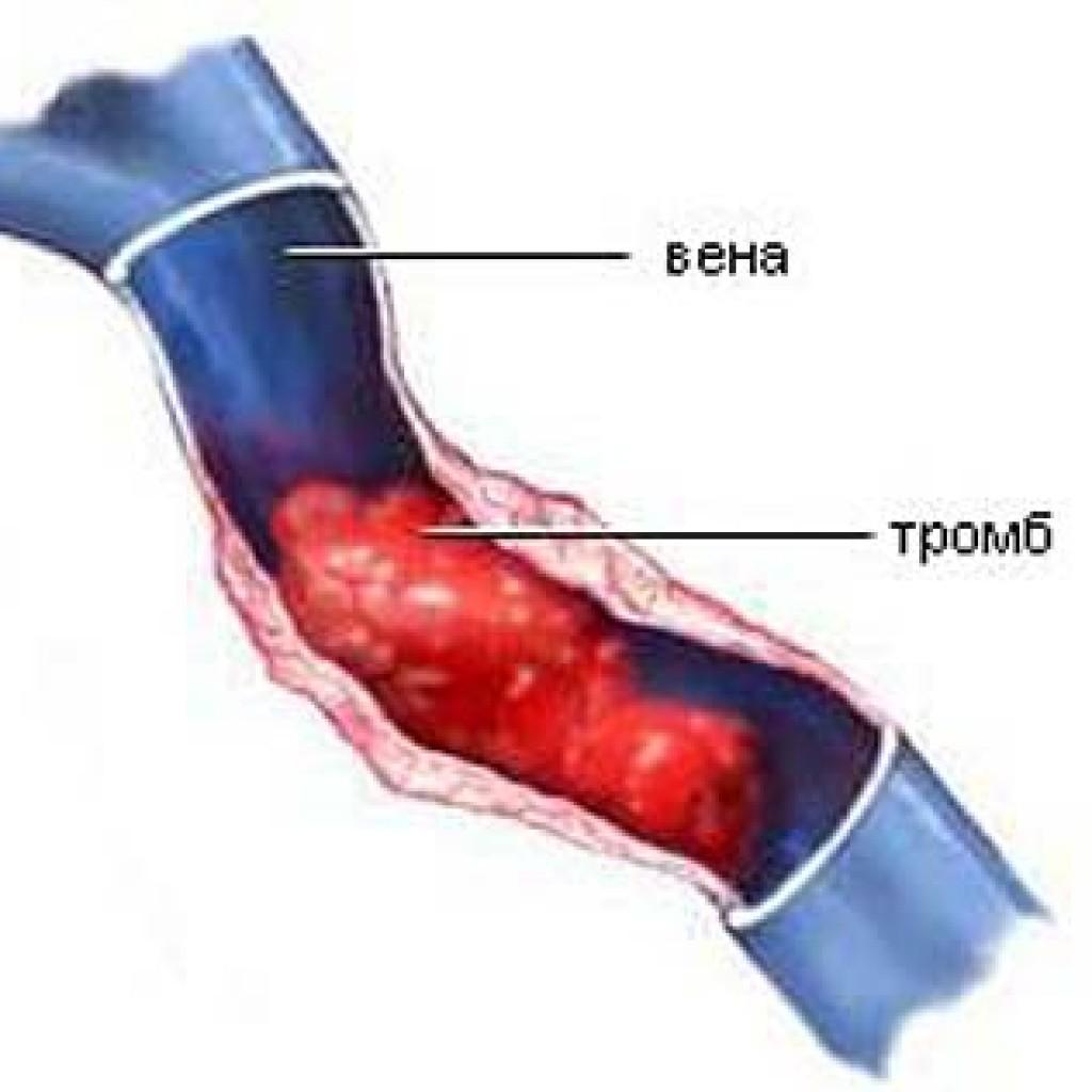 Венерические заболевания - симптомы, признаки, анализы и ...