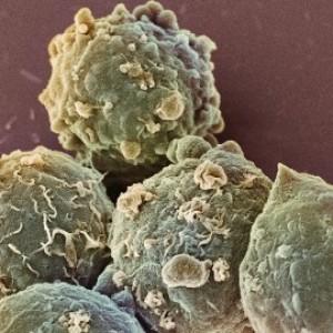 Вторичный тромбоцитоз причины