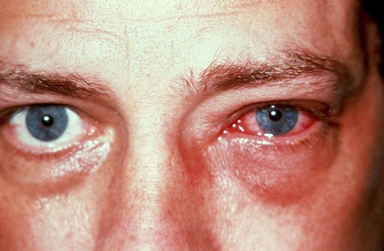 Тромбоз глаза фото