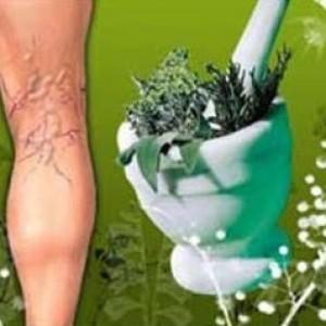 Тромбофлебіт лікування народними засобами » журнал здоров'я iHealth