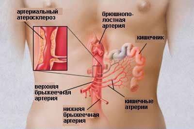 Тромбоз кишечника фото