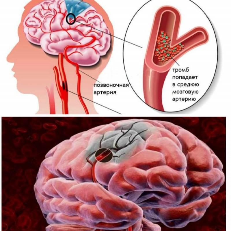 Лопнул сосуд в головном мозге последствия