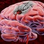 Тромб в голове симптомы