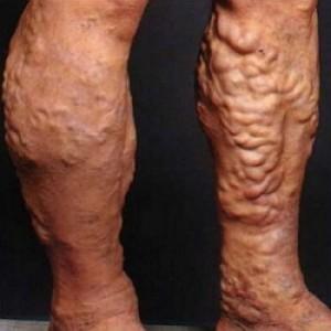 Тромбофлебит глубоких вен нижних конечностей симптомы лечение ...
