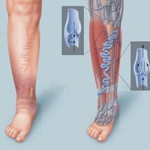 Тромбоэмболия нижних конечностей
