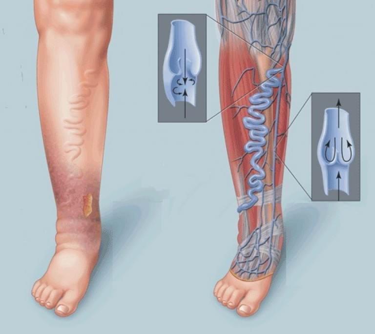 Варикоз вен нижних конечностей симптомы и лечение
