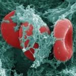 Как распознать тромбы