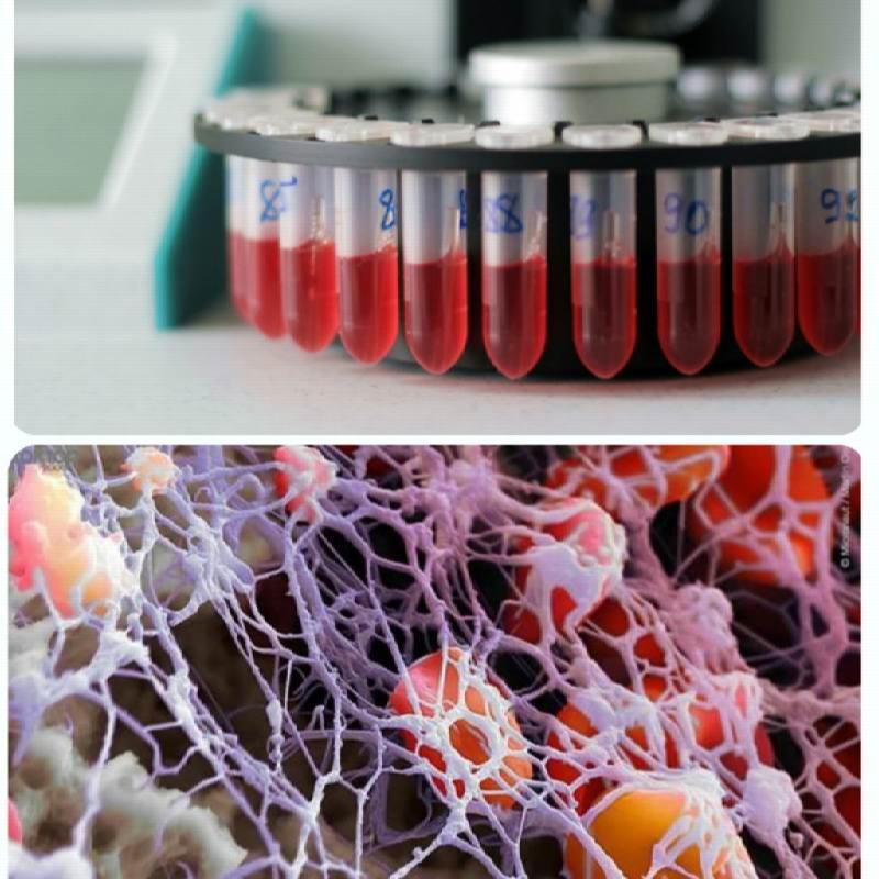 Как обозначаются в общем анализе крови тромбоциты