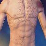 Тромбоцитопения причины и лечение