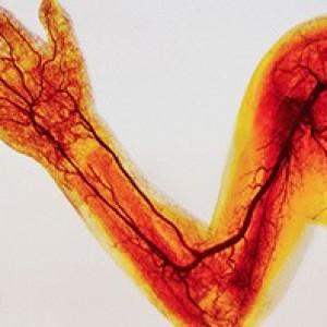 Варикозное расширение вен на ногах симптомы и причины лечение