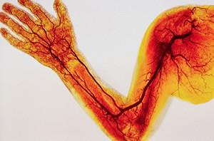 Тромбофлебит симптомы и лечение фото верхних конечностей