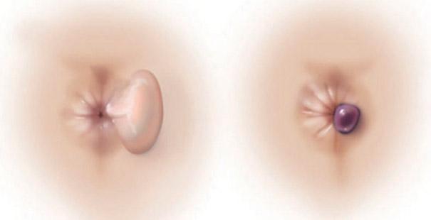 Энуклеация геморроидального узла