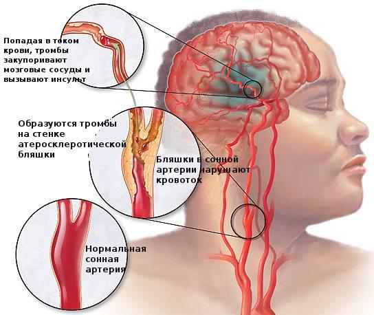 Тромболитическая терапия при ишемическом инсульте