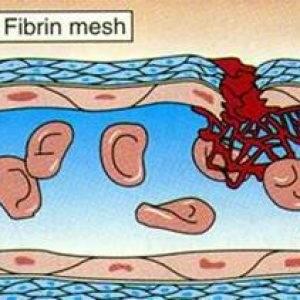 Как избавиться от тромбов в венах