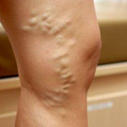 Симптомы тромбофлебита на ногах