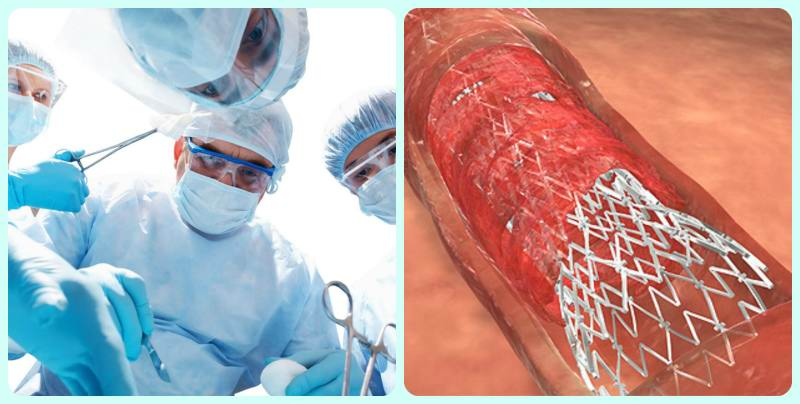 Операция при тромбофлебите