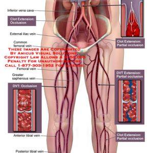 Тромбоз подвздошной вены