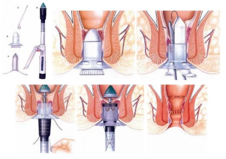 Глисты у человека  симптомы признаки лечение  Азбука
