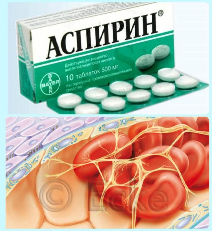 Тромбоз и аспирин