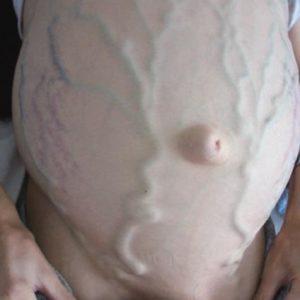 Тромбоз нижней полой вены