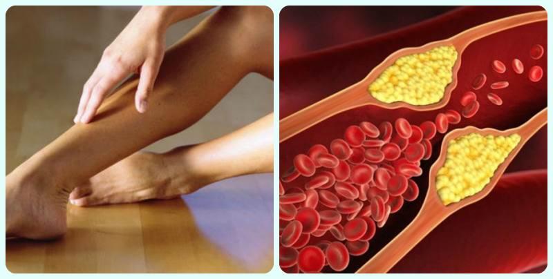 Артеріальний тромбоз » журнал здоров'я iHealth