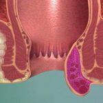 Тромбофлебит геморроидальных вен заднего прохода
