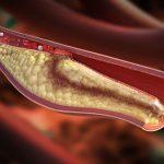 Что такое тромбоэмболия ног?