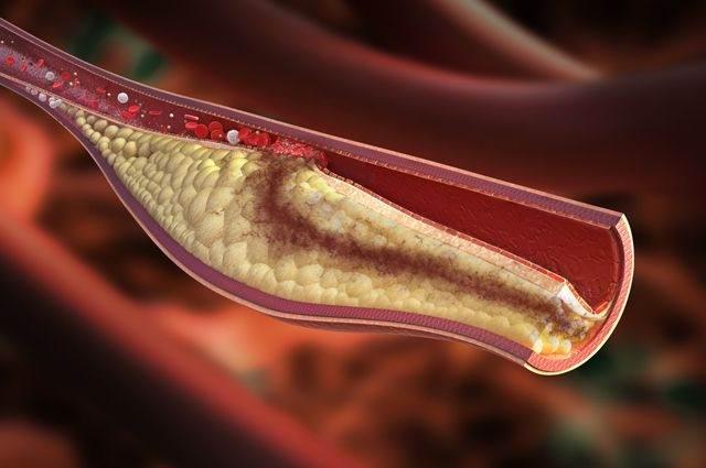 Тромбоэмболия ног