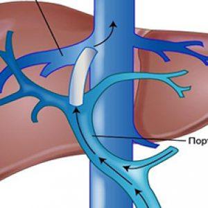 Тромбоз ворітної вени » журнал здоров'я iHealth
