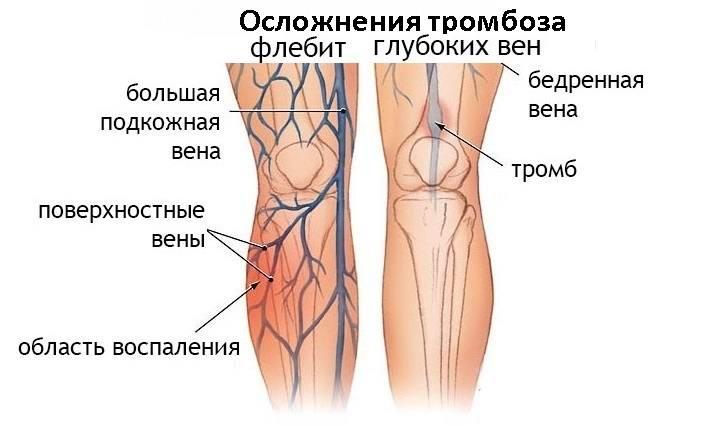 Осложнения тромбоза