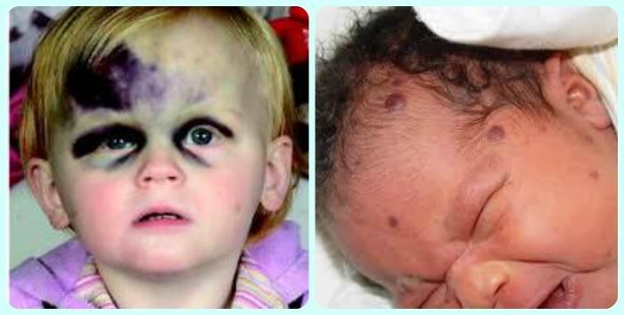 Тромбоцити у новонароджених » журнал здоров'я iHealth