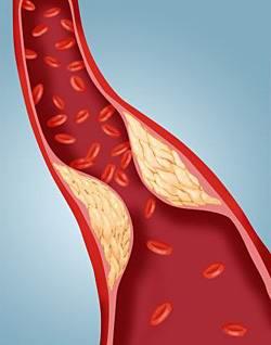 атеросклероз магистральных артерий